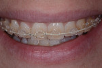 Month 2 of orthodontic treatment.
