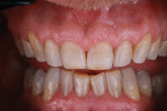 Patient teeth after preparation is completed using FirstFit preparation guides.
