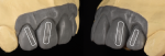 Fig 2. Light reflection shows the optical view of how we see teeth. These optical reflections are areas where the substructure design needs convexity to aid in the light reflection.