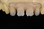 Fig 6. As zirconia needs fluorescence, a liner is applied to add fluorescence as well as chroma and value following the substructure convexities and concavities.