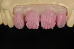 Fig 7. Based on the substructure design and liner materials, the dentin layer is simplified.