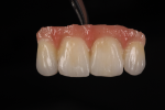 Fig 10. After one bake, some slight contouring and glazing are performed. With very basic layering, the substructure design aids in the final esthetic result.