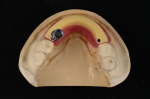 Fig 21. A bilaterally screw-retained wax rim is measured, cut, and fixed to the baseplate.