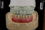 Fig 26. The completed wax try-in with gingival contouring and color.