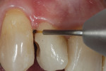 Super-pulsed diode laser used to create a supragingival margin to allow for easier matrix placement and a better seal during flowable composite placement.