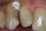WedgeGuard placed to protect the adjacent proximal surface during removal of the existing composite.