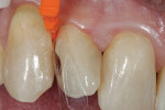 A matrix is placed and wedged to seal the gingival margin of the preparation.