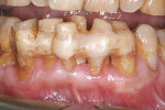 Figure  1  CASE PRESENTATION Preoperative clinical view. Teeth Nos. 22 through 27 showed splinting and heavy staining.