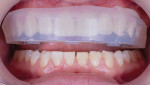 Patient is fitted with the trial smile using a clear matrix.