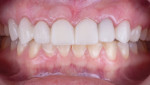 Trial smile bonded during marginal healing period.