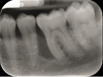 Fig 2. Pre-orthodontic radiograph showed the extent of the infrabony defect on tooth No. 19.