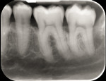 Fig 8. Radiograph made 4 years post-orthodontic movement. Note the complete radiographic fill of the mesial infrabony defect with continued remodeling and re-establishment of the lamina dura.