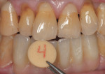 Figure  15  CASE PRESENTATION Custom porcelain shade tabs were used to match the highly characterized dentition of the patient.