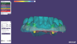 Fig 9. The software generates preformed telescopic abutments that can be edited.