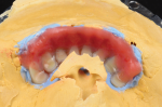 Fig 30. Darker shades of acrylic are placed near the vestibular area and blended back toward the attached gingiva.