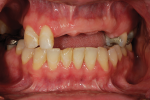 Fig 1. Pre-treatment frontal view shows setting for restoration of the missing front teeth.