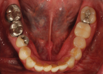 Fig 3. Evidence of patient's prior head trauma and extensive dental treatments are shown in the pre-treatment maxillary occlusal view, pre-treatment mandibular occlusal view, and pre-treatment panoramic radiograph, respectively.