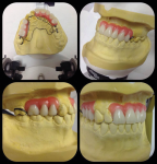 Fig 6. The diagnostic wax-up aided the prosthodontist to develop the RPD design.