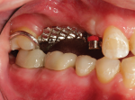 Fig 17. The RPD framework with angle-correcting attachments was tried in the patient's mouth to ensure a passive fit.