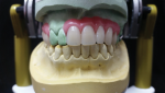 Fig 18. The occlusal and anterior denture teeth set-ups are shown here.