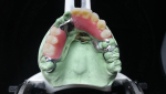 Fig 19. The occlusal and anterior denture teeth set-ups are shown here.