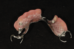 Fig 20. The prosthodontist provided the implant-assisted RPD by incorporating two clear nylon inserts chairside using a cold-cure acrylic.