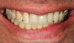Fig 22. Post-treatment frontal view shows the final result.