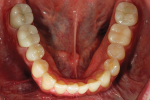 Figure 24. Post-treatment mandibular occlusal view shows the final result.