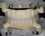 Fig 1. A milled PMMA surgical prosthesis is shown prior to application of Ceramage UP gum composite.