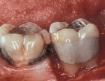 Figure  3  CLINICAL CASE Final restorative therapy of root surface caries.
