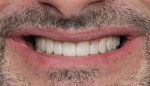 Smile photo with provisional (1:2 magnification).