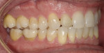 Results after 6 months of re-treatment utilizing clear aligners in conjunction with the sleep appliance.