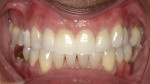 Final treatment photo following orthodontics and restoration of upper central incisors.
