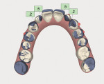Fig 16. Occlusal view showing an overlay of the pre- and postorthodontic software models, with the purple areas representing the tooth position in the preoperative model.