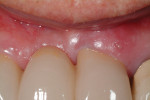 Fig 1. Gingival swelling on labial aspect of fixed bridge abutment maxillary left central incisor.