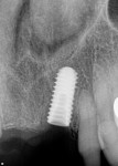Fig 3. Radiograph showing 5-mm x 11.5-mm dental implant placed immediately after extraction of left central incisor tooth.