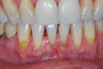 Fig 1. Mucogingival defect on tooth No. 24 at initial examination.