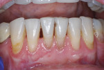 Fig 5. Eight weeks after the No. 24 free gingival graft.