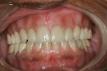 Figure 2  Frontal view of maxillary Turbyfill denture.