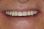 Figure 6  Postoperative smile with both overdentures in place.