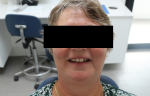 Fig 3. A portrait image of the patient's natural dentition, which she wanted the denture to resemble closely.