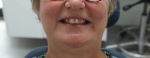 Fig 7. A close-up of the patient's face in a smile position.