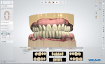 Fig 10. Digital software is used to design the restorations, incorporating a photo of the patient to match the design to her natural dentition.