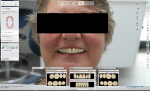 Fig 12. Digital software is used to design the restorations, incorporating a photo of the patient to match the design to her natural dentition.