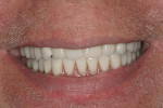 Figure 17  Postoperative smile with lower overdenture in place.