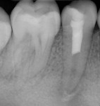 Final periapical radiograph taken after regenerative endodontic treatment on tooth No. 29.