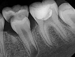 Final radiograph taken after vital pulp cryotherapy treatment on tooth No. 19.