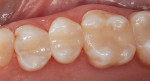 Teeth restored with a composite resin that utilizes structural color technology. The shade of these teeth is Vita B1.
