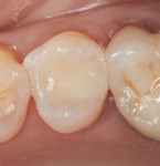 Teeth restored using the same single-shade composite resin as in Figure 1. The shade of these teeth is Vita A3.