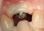 Figure 18 Placement of 4-mm tall CAD/CAM healing abutment to facilitate final impression.